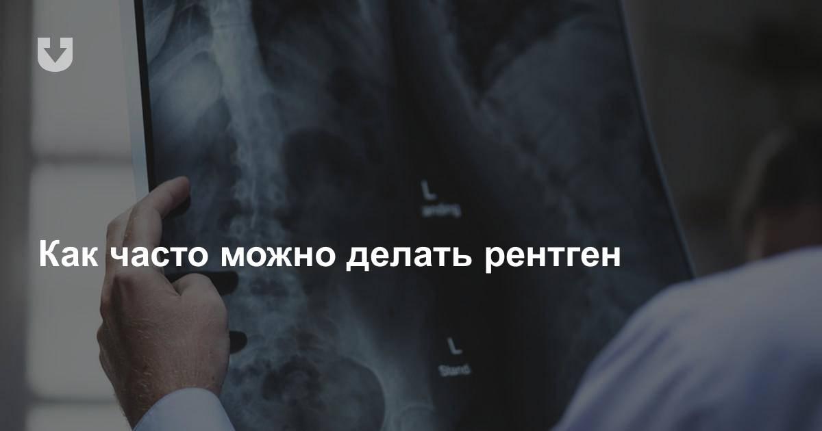 Как часто можно делать рентген