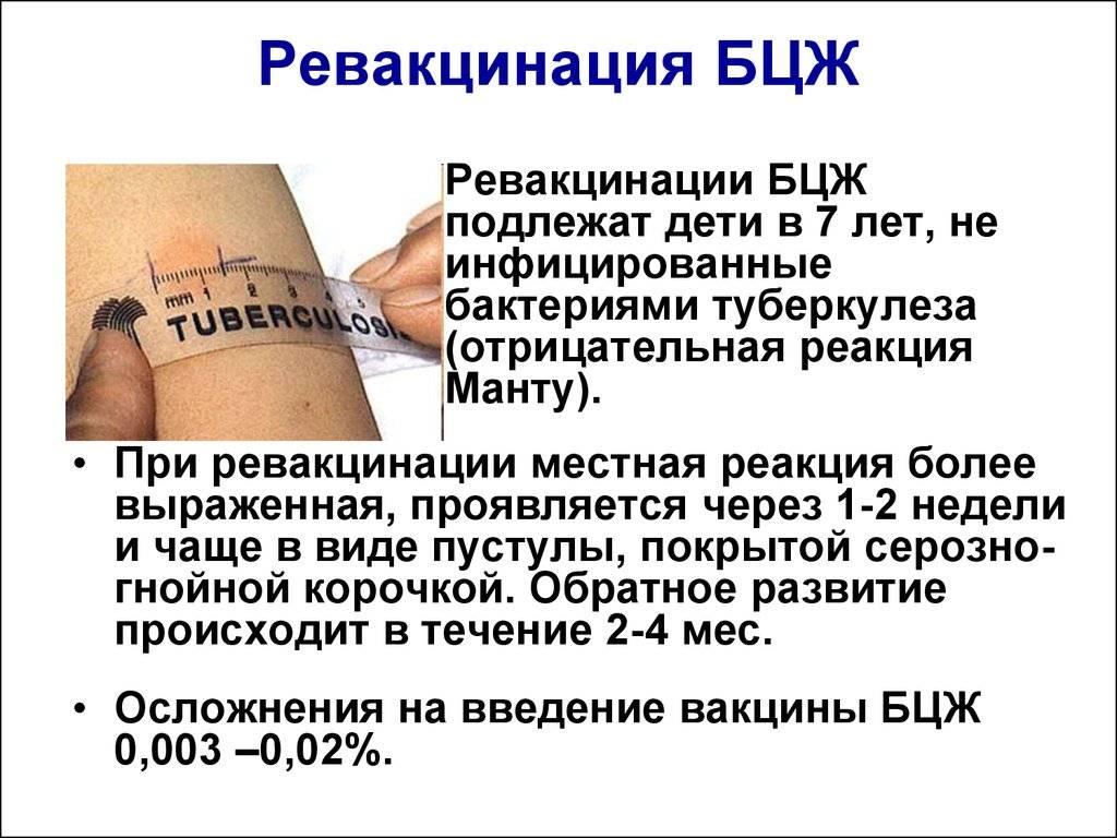 Прививки новорожденным детям: от гепатита в, бцж от туберкулеза - сибирский медицинский портал