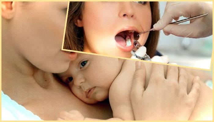 Можно ли лечить и удалять зубы во время лактации