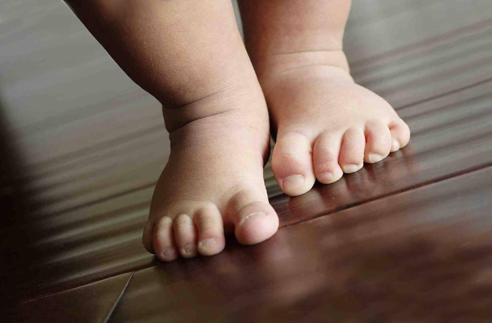 Сухая кожа рук и тела у новорожденного: почему и что делать
