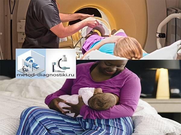 В каких ситуациях может понадобиться компьютерная томография при грудном вскармливании