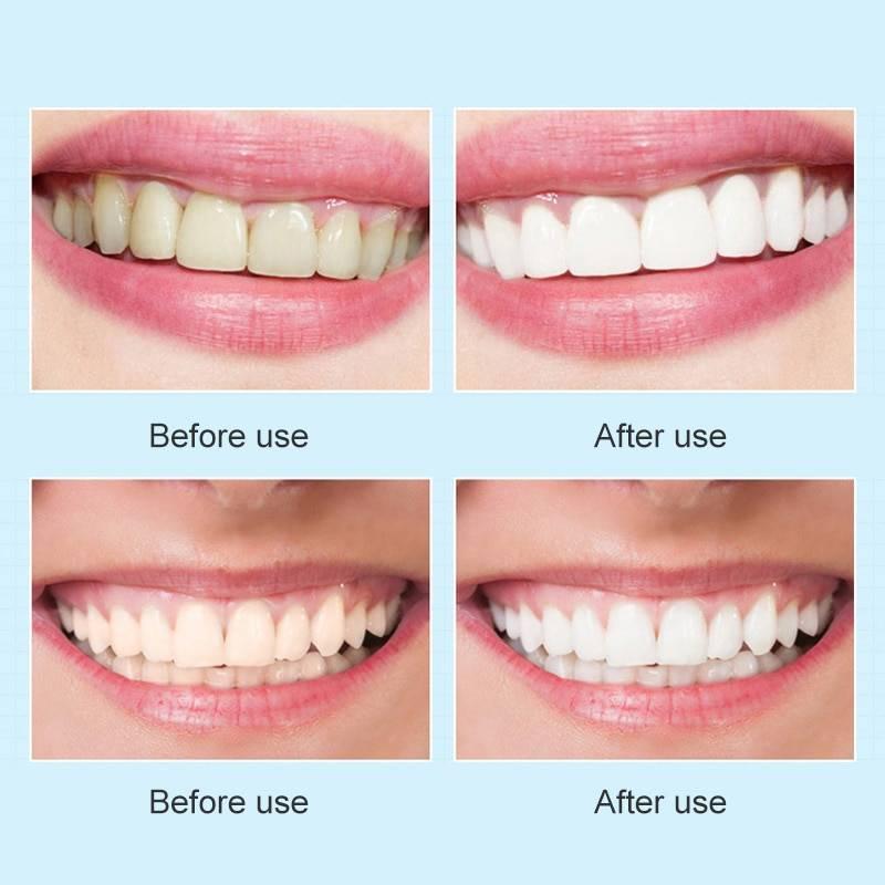 Белая диета — какие продукты можно есть после отбеливания зубов?