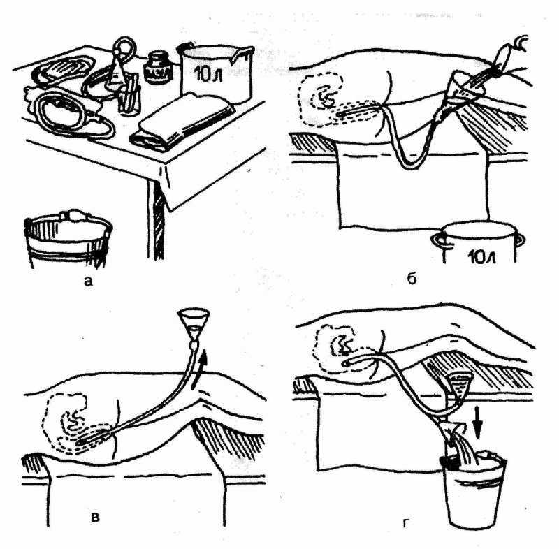 Как сделать клизму новорожденному ребенку в домашних условиях: видео - мытищинская городская детская поликлиника №4
