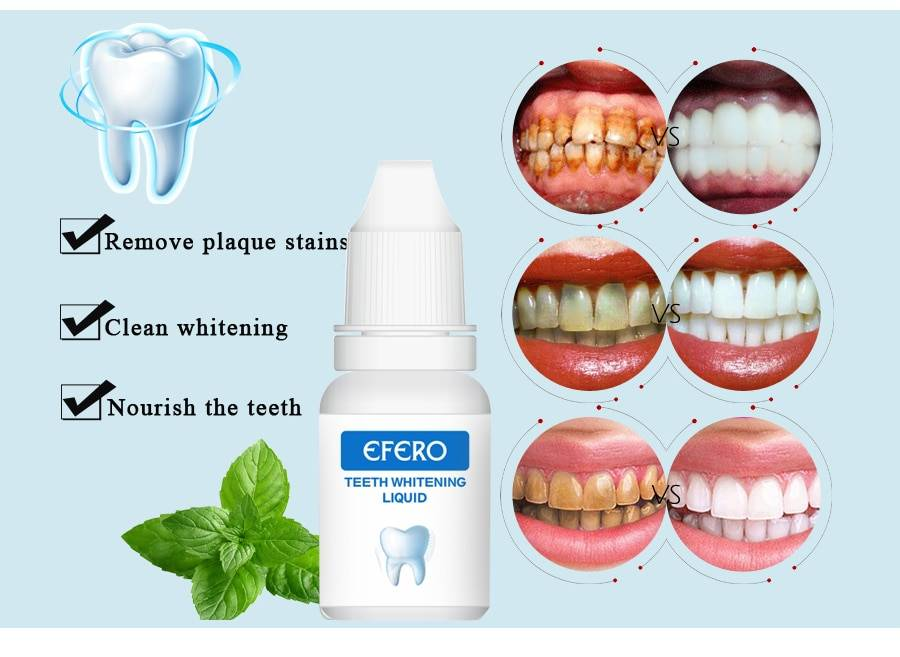Виды противопоказаний при имплантации зуба | когда нельзя ставить зубные импланты