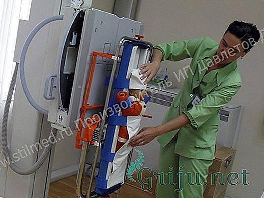Рентген пазух и костей носа: показания, техника проведения, что показывает | компетентно о здоровье на ilive