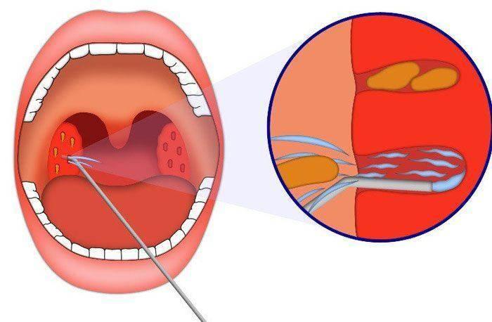Молочница во рту (кандидоз полости рта) + фото