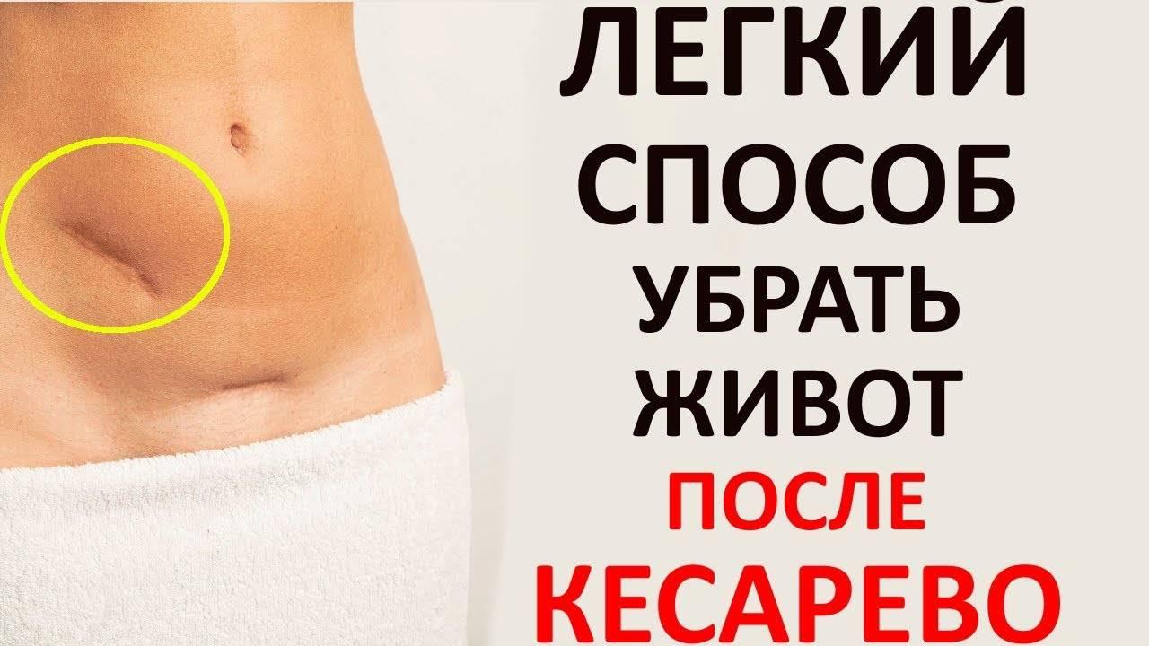 Как убрать живот после кесарева сечения? упражнения + видео!