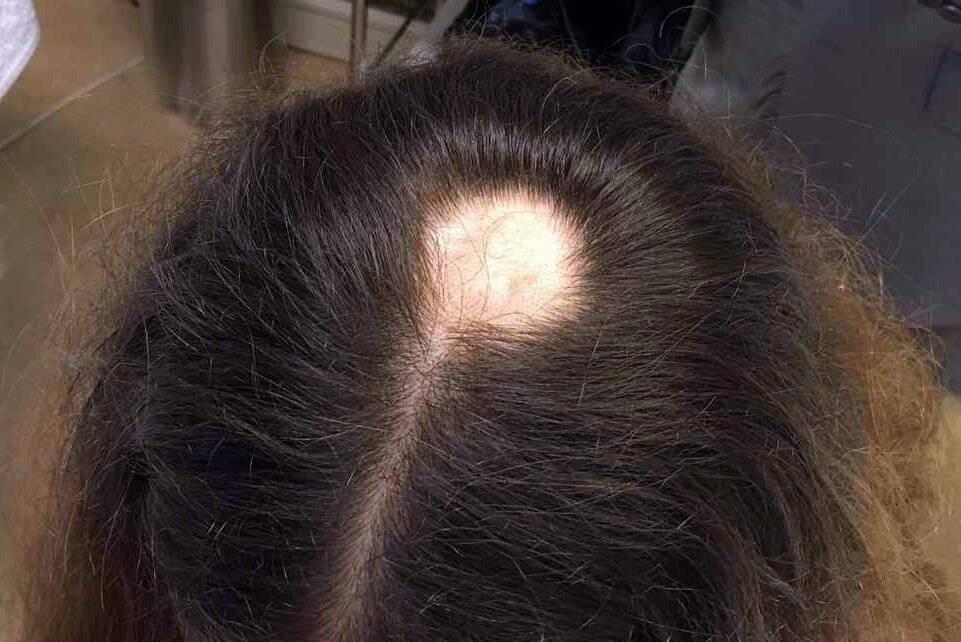 Выпадение волос у детей: причины и методы лечения