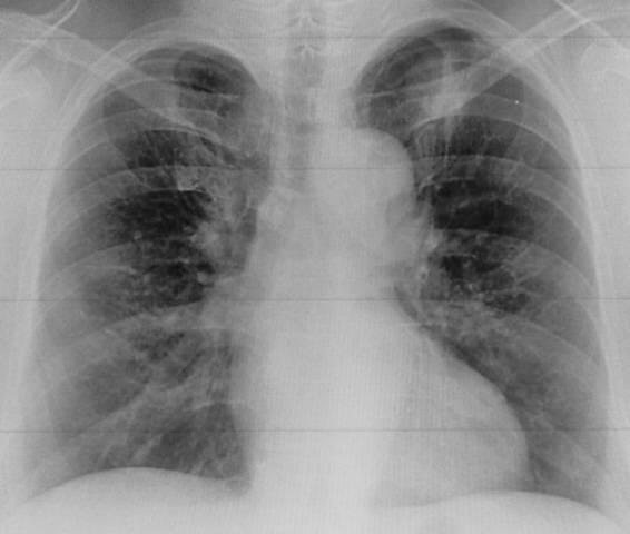 Рентген грудной клетки: что показывает, как проводится. показания к рентгену органов грудной клетки
