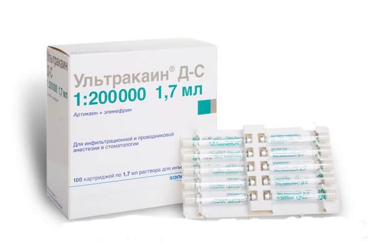 Ультракаин: инструкция к применению, формы выпуска, применение в стоматологии