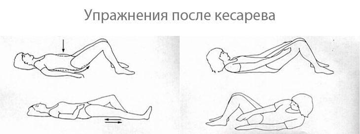 Как похудеть после кесарева и убрать живот питанием, упражнениями и массажем