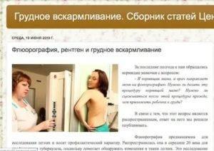 Вредит ли флюорография при грудном вскармливании ребенку