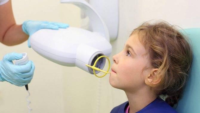 Рентген тазобедренного сустава в детском возрасте: особенности и правила проведения