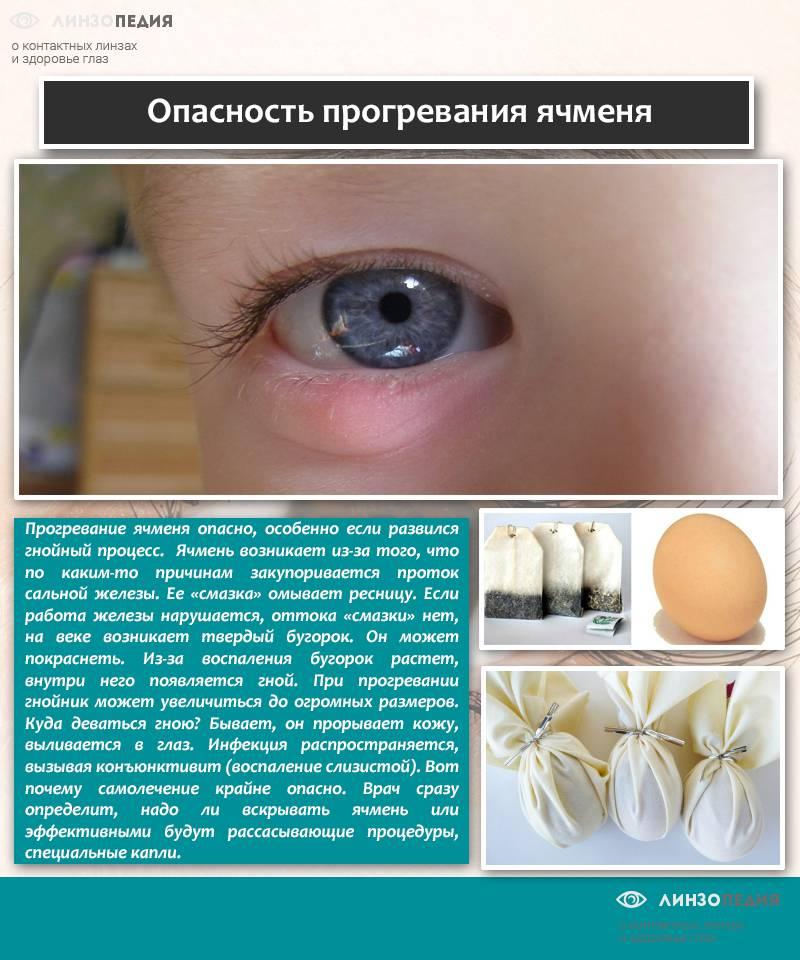 Ячмень на глазу при грудном вскармливании: тактика лечения
