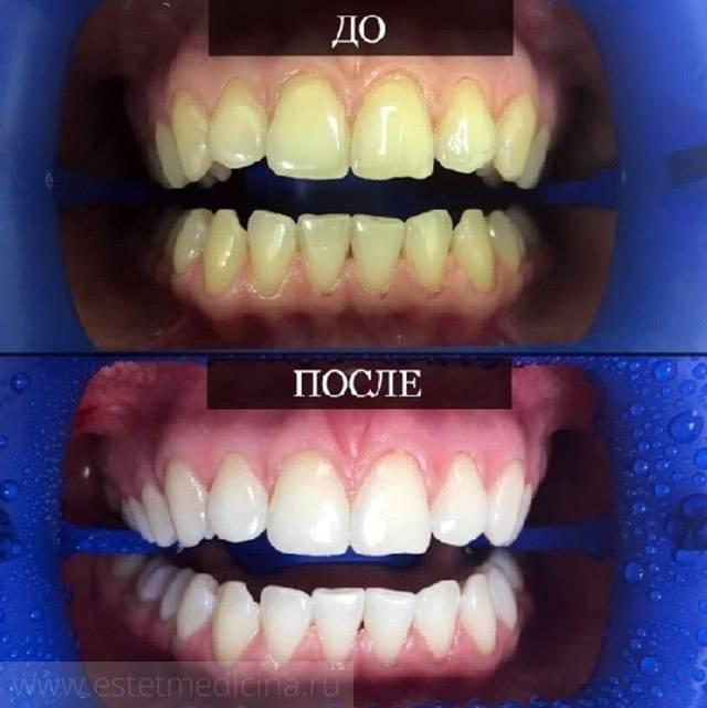 Отбеливание зубов: плюсы и минусы, виды, цены, отзывы, отбеливание в домашних условиях