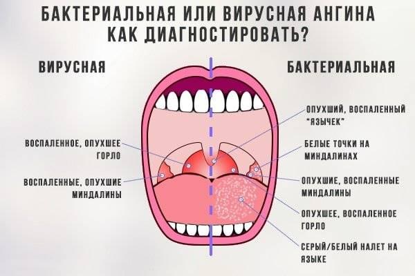 Боль в горле, инфекции при грудном вскармливании