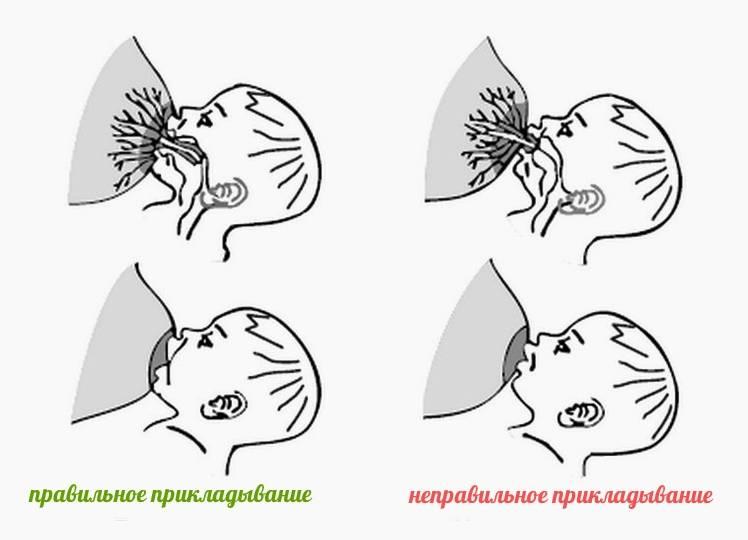 Боль в мышцах груди | компетентно о здоровье на ilive