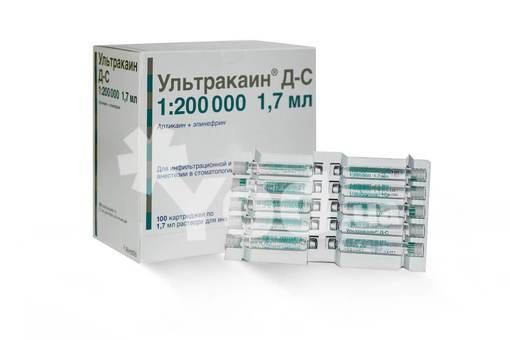 Ультракаин – анестезия в стоматологии, инструкция по применению, отзывы