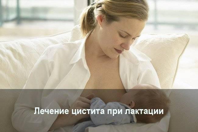 Цистит у кормящей мамы – как лечиться, не прерывая грудного вскармливания