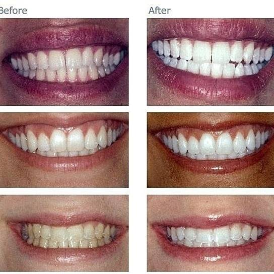 Оттенки зубов: шкала, условия для определения оттенка зубов, код оттенка