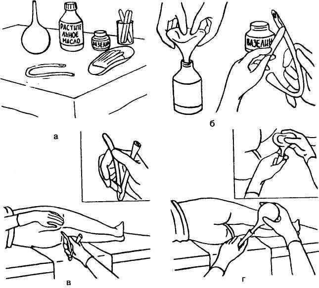 Пациентам: классическая подготовка клизмами и касторкой
