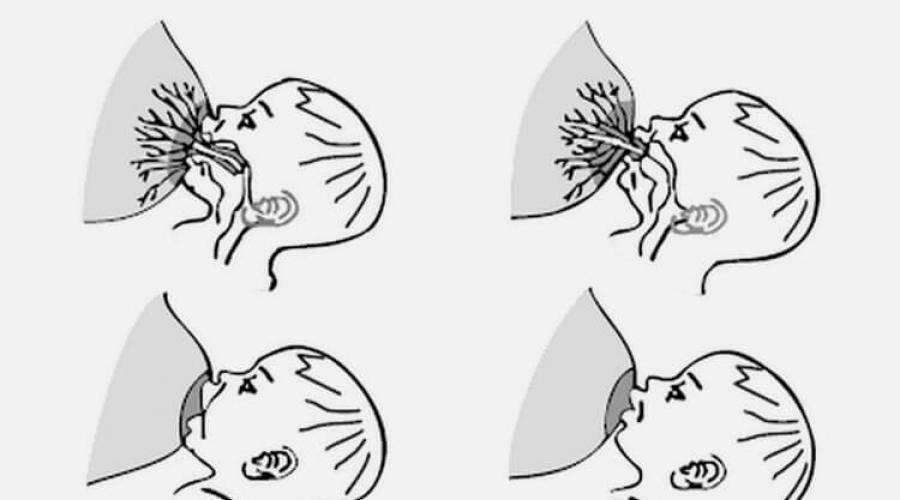 Лечение ячменя при грудном вскармливании