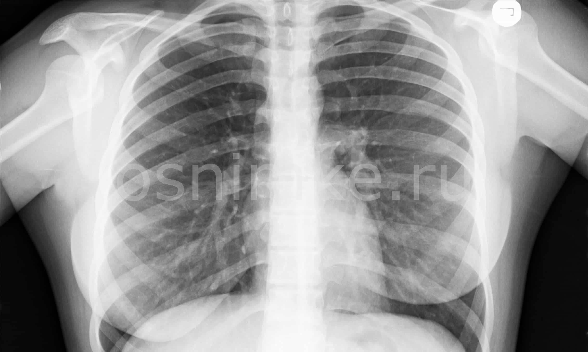 В чем разница между рентгенографией легких и флюорографией