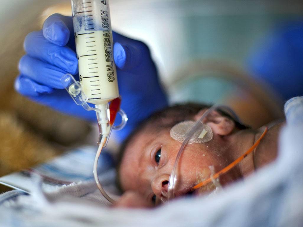 Особенности вскармливания недоношенных детей