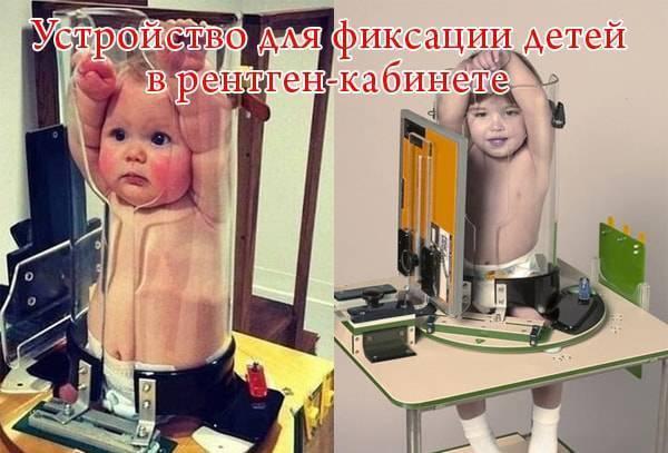 Сколько раз можно делать рентген ребенку