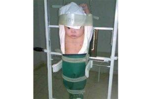 Как часто можно делать рентген ребенку и чем он опасен для младенцев и детей от года: с какого возраста назначают детскую рентгенографию, вред и последствия