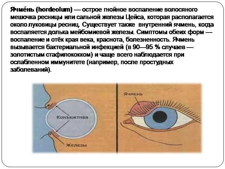 Ячмень на глазу при грудном вскармливании: как лечить