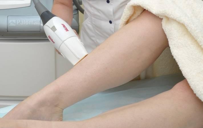 Лазерная эпиляция при грудном вскармливании: можно ли делать, рекомендации врачей, меры предосторожности