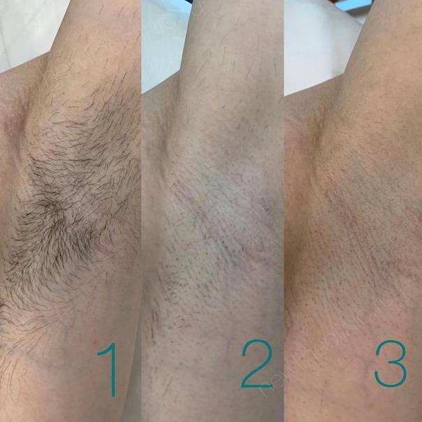 Лазерная эпиляция – противопоказания vs желание идеально гладкой кожи