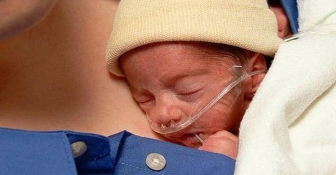 Метод «Кенгуру» для недоношенных детей — шанс выжить?