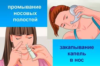 Как и чем лечить насморк при грудном вскармливании