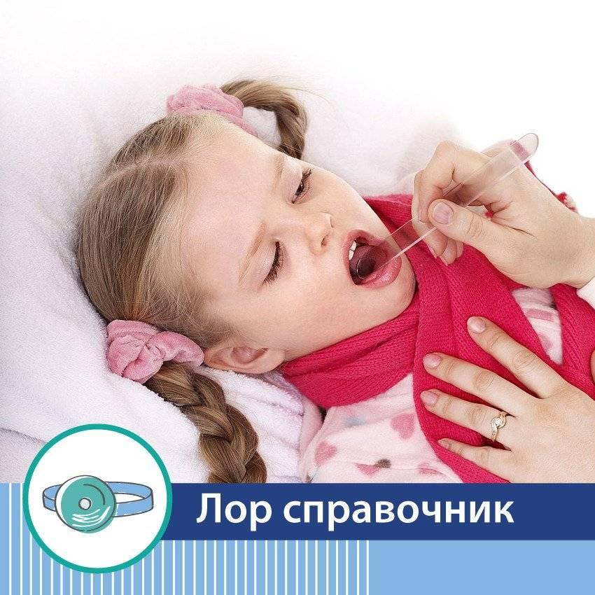 Лечение ангины у взрослых