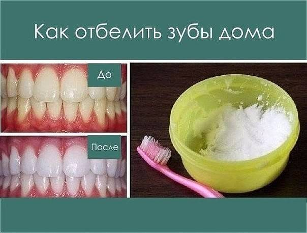Какие продукты можно есть после отбеливания зубов?
