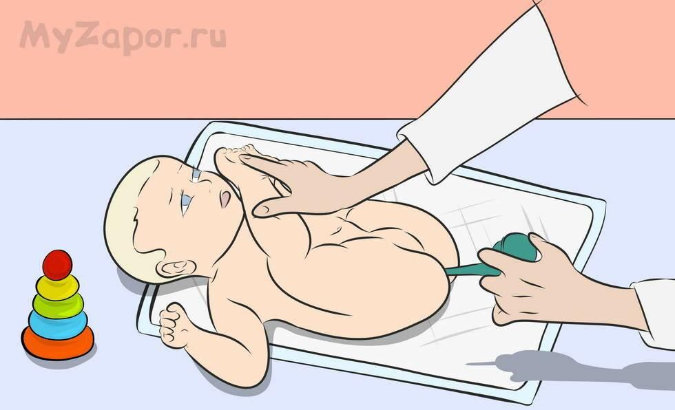 Ирригоскопия кишечника: подготовка и проведение процедуры