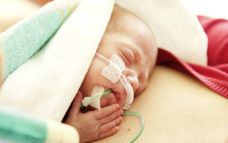 Недоношенный ребенок (педиатрия)